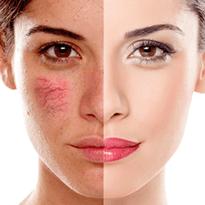 Capilare sparte pe fata. Tratament modern pentru capilare sparte in clinica Derma Expert by Elōs