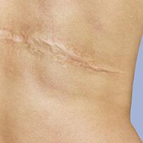 Cicatricele aparute dupa accident reprezinta o parte naturala ce apar cand tesutul fibros inlocuieste pielea normala
