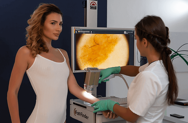 Dermatoscopie digitala cu ajutorul tehnologiei FotoFinder pentru investigarea amanuntita a pielii.