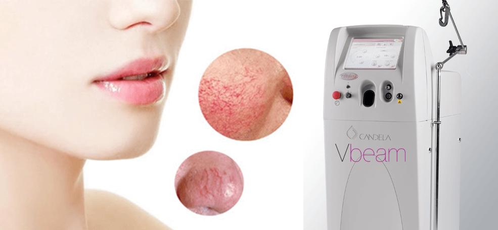 Tratare leziuni vasculare cu ajutorul tehnologia Vbeam in clinica Derma Expert by Elōs