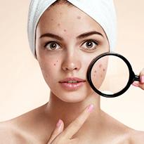 Tratament impotriva acneei folosind peelingul chimic. Produse dermatologice profesionale din gama Filorga