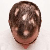 Tratament impotriva alopeciei areata. Derma Expert by Elōs detine cea mai nou tehnologie disponibila din tara.