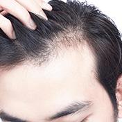 Tratament impotriva caderii parului la barbati. Clinica Derma Expert by Elōs foloseste produsele profesionale Filorga