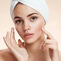Tratament eficient impotriva acneei folosind peelingul chimic prin exfolierea epidermica sau dermica