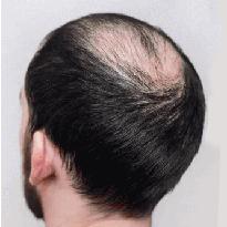 Tratament pentru barbati impotriva alopeciei areata. Derma Expert by Elōs foloseste cele mai noi produse Cellenis.
