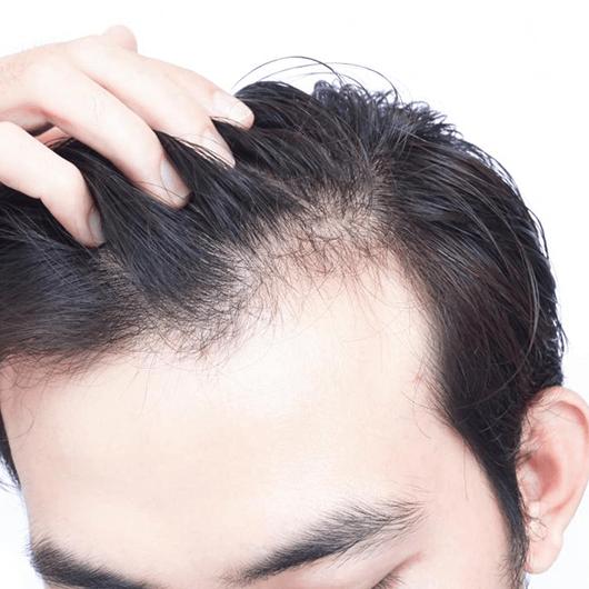 Tratament impotriva caderii parului la barbati folosin produse profesionale din gama Filorga.