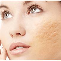 Tratament laser pentru cicatrici postacneice. Tratament de ultima generatie recomandat de medicii dermatologi.