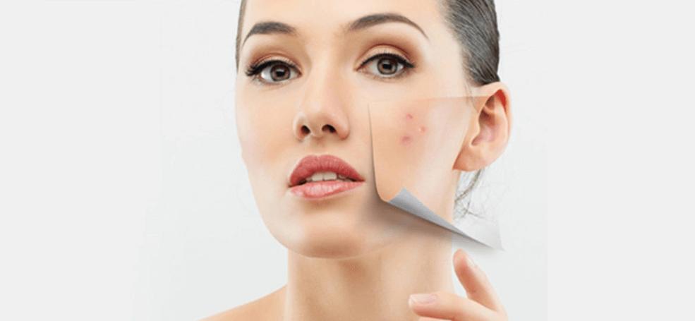 Tratament modern impotriva acneei folosind tehnologii noi cu laser testate de medicii dermatologi.