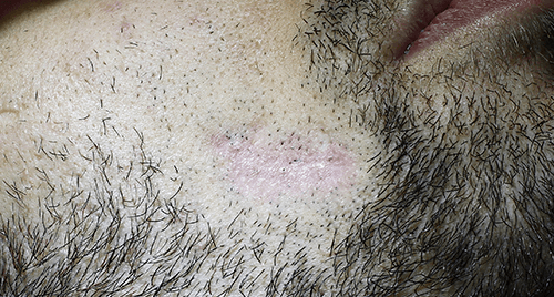After-Tratament laser CO2 cicatrici