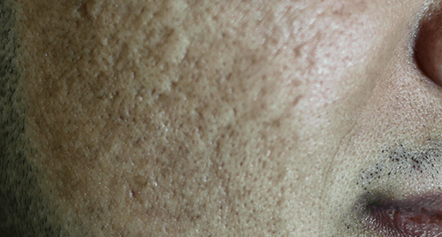Before-Tratament laser CO2 cicatrici