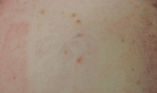 After-Îndepărtare tatuaj