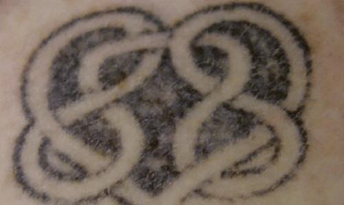 Before-Îndepărtare tatuaj