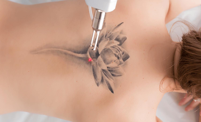 Indepartare tatuaj cu ajutorul laserului. Solutii profesionale pentru indepartarea tatuajelor fara a afecta pielea.