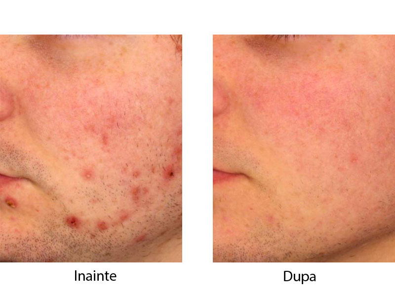 tratament laser acnee bucuresti