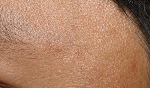After-Tratament lentigine solare